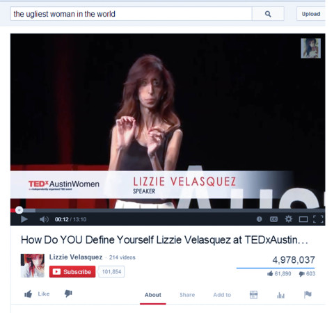 Lizzie Velasquez is a 25-year-old American who gives motivational speeches, some of which are posted on her YouTube channel, above. She suffers from a rare condition that prevents her from gaining weight and now gives speeches on how her image affects her life.